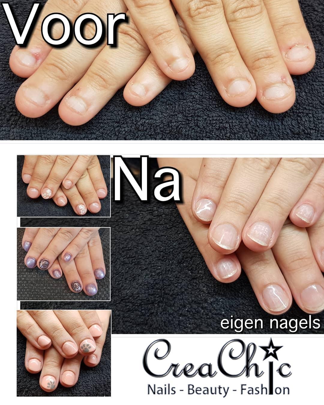 creachic-nagelbijten-nagelbijtarrangement